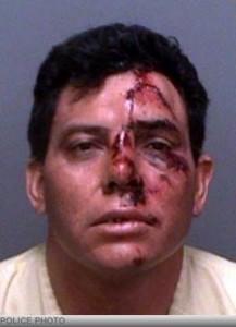 big-john-mccarthy-assailant-mugshot-beaten-up